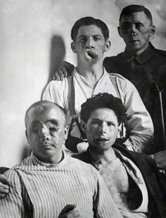 Disfigured Soldiers of World War I