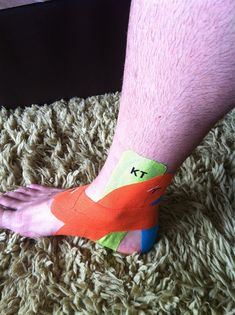 KT Tape for plantar fasciitis and ankle support