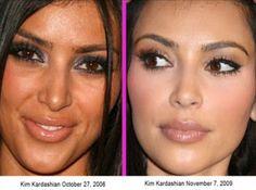 SEE Kim Kardashian Before & After Plastic Surgery (PHOTOS) - Celebrities - Nairaland