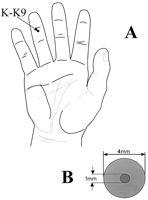 Korean hand pressure point for nausea