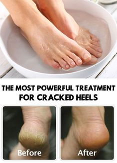 The Most Powerful Treatment For Cracked Heels Whether it's about bad odor or cracked heels, these problems are hard to accept for many people. Here is The Most Powerful Treatment For Cracked Heels Cracked Heals Remedy, Cracked Feet Remedies, Heal Cracked Heels, Diy Foot Scrub For Cracked Heels, Dry Heels, Cracked Heels Treatment, Skin Treatments, Places, Beauty