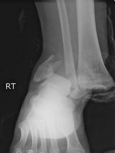Operating Room Registered Nurse: My Career: Jumping off a high wall caused this ankle fracture Radiology Humor, Medical Humor, Nurse Humor, Radiologic Technology, Dental Jokes, Rad Tech, Surgical Tech, Medical Imaging, Funny Nursing