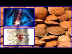 Cure Sua Hérnia De Disco Bico De Papagaio E Artrites