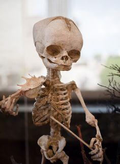 Frederik Ruysch   Posed Infant Skeleton From a Frederik Ruysch Tableaux Recreation Seen ...