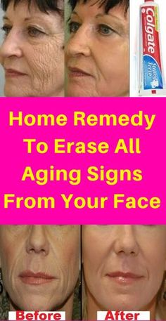 Skin Care ideas for smooth and glowing skin - The best face skin care steps and ideas. natural skin care face simple image status 7623392308 gathered on 20190417 Beauty Skin, Health And Beauty, Face Beauty, Natural Beauty Tips, Younger Looking Skin, Tips Belleza, Belleza Natural, Teeth Whitening, Glowing Skin