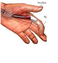 finger locks in the fist position jpg 1152x768
