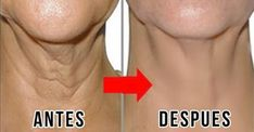 How to get rid of wrinkles on your neck and look younger!- Wie du Falten am Hals los wirst und somit jünger aussiehst! – Daily lifestyle How to get rid of wrinkles on your neck and look younger! Best Anti Aging Creams, Anti Aging Tips, Anti Aging Skin Care, Natural Skin Care, Essential Oils For Face, Neck Wrinkles, Skin Care Tips, Healthy Skin, Grow Hair