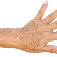 dolor en las articulaciones infección por parásitos