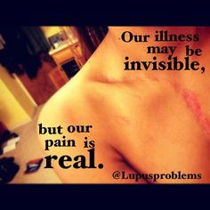 Lupus, our illness may be invisible but our pain is real. And we all have the scars to prove it