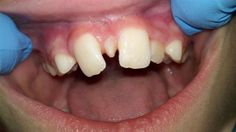 Mesiodens is a supernumerary tooth present in the midline between the two central incisors. It usually results in oral problems such as malocclusion, food impaction, poor aesthetics, and cyst formation. Dental Hygiene School, Dental Assistant, Dental Hygienist, Dental Fun Facts, Dental Jokes, Dentistry For Kids, Dental World, Free Dental, Pediatric Dentist
