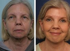 Learn To Get Your Face Healthy, Firmed Up, And Toned By Means Of This Nodal Facial Strengthening Regimen