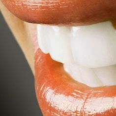 Westchester Porcelain Veneers have long been used to create the ultimate smile makeover. Revitalise your smile with these dental restorations! Call us today at Health And Fitness Tips, Health And Beauty, Preventive Dentistry, Dental Aesthetics, Dental Fillings, Porcelain Veneers, Dental Veneers, Smile Dental, Smile Makeover
