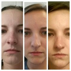 My personal Nerium real results. 6 months.   WWW.NERIUM.COM/AMELIABERGER