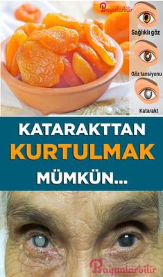 The easiest way to get rid of cataract - History Natural Teething Remedies, Natural Cough Remedies, Herbal Remedies, Health Insurance Cost, Natural Herbs, Natural Medicine, Fitness Nutrition, Simple, Health And Wellness