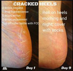 heal cracked heels w/ oregano, frankincense, lemon & peppermint!