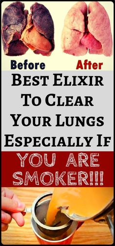 This is the best elixir to clean your lungs especially if you are smoker - health and fitness. Health And Wellness, Health Tips, Health Fitness, Wellness Tips, Mental Health, Ginger Benefits, Health Benefits, Before And After Weightloss, Health Remedies