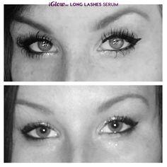 Før og etter iGlow Long Lashes Serum http://www.iglow.no/iglow_long_lashes_serum/