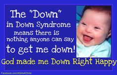 :) #Downsyndrome
