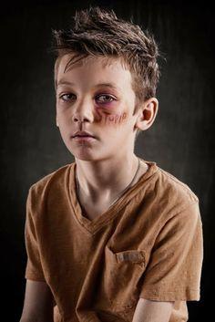 """Poderosas fotografias Anti-Abuso destacam a dor causada por palavras pejorativas.   O fotógrafo Richard Johnson tem uma série poderosa chamada """"Escolha das Armas"""", que destaca a dor causada por palavras pejorativas."""
