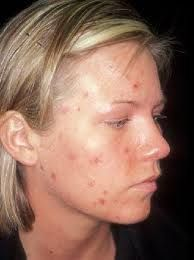 Vitamin gives outstanding results when it comes to how to get rid of cystic acne. What's so good about this remedy is the fact that it's entirely natural. It often works a lot better than topical remedies. Some topical treatments are very efficient, bu Home Remedies For Ringworm, Cystic Acne Remedies, Natural Acne Remedies, Homeopathic Remedies, Acne Medicine, Homemade Acne Treatment, Acne Scar Removal, How To Get Rid Of Acne, Natural Remedies