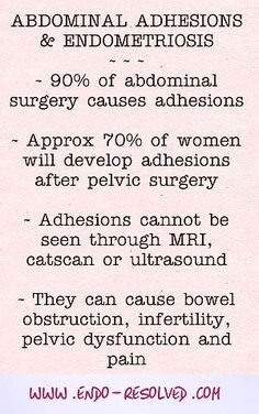 #endometriosis and abdominal adhesions - causes, symptoms, and natural treatments to help