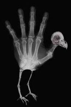 Radiology humor X Radiology Humor, Medical Humor, Nurse Humor, Chiropractic Humor, Hand Turkey, Radiologic Technology, Dental Jokes, Dental Hygiene, Rad Tech