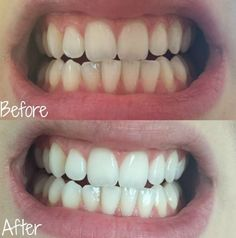 New Study Reveals Coconut Oil Is Far Than Your Toothpaste (Whitening Teeth) - wow it's Amazing.. | Fact Rider