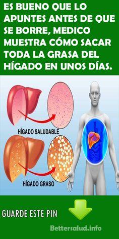 ES BUENO QUE LO APUNTES ANTES DE QUE SE BORRE, MEDICO MUESTRA CÓMO SACAR TODA LA GRASA DEL HÍGADO EN UNOS DÍAS.  #medico #grasa #hígado #salud #remedios