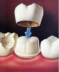 Per proteggere e ripristinare la funzione, la forma ed il colore del #dente cariato vengono usate le #corone #protesiche.