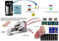 Technetium-99m imaging (Technetium (99mTc) for cardiac imaging)