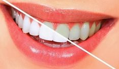 URBN Dental offers professional teeth whitening in Houston, TX for patients who want brighten their smile. Book painless teeth whitening services in Houston today! Teeth Whitening Remedies, Natural Teeth Whitening, Whitening Kit, Skin Whitening, Teeth Implants, Dental Implants, Dental Hygienist, Emergency Dentist, Fitness Exercises