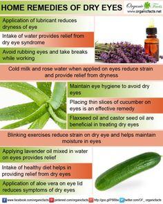 dry eyes remedies
