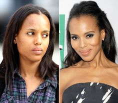 Stars Without Makeup: Kerry Washington-keep wearing the make-up.  STARS...THEY'RE JUST LIKE US. (sickly-looking without make-up) but still a pretty girl.