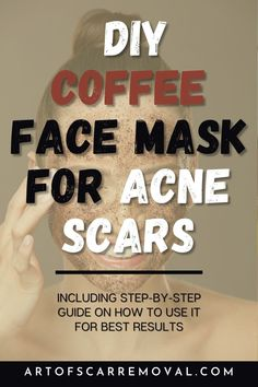 Coffee isn't just for waking you up in the morning. While coffee beans are a wonderful source of caffeine and flavor in beverages, they're also full of active compounds that can work wonders on your skin. Coffee can smooth skin, improve circulation, and protect against acne, making it a perfect ingredient for a DIY face mask. Read on! | ArtofScarRemoval.Com Organic Skin Care, Organic Beauty, Natural Skin Care, Diy Mask, Diy Face Mask, Coffee Face Mask, Acne Face Mask, Scar Treatment, Beauty Recipe