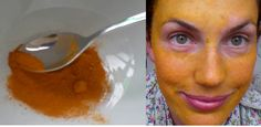 Turmeric to Cure Melasma