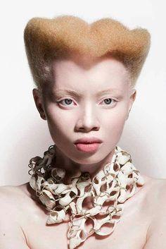 Thando Hopa * African Elbino