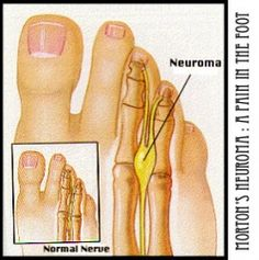 """A Morton's Neuroma is such a pain in the foot let me tell you! I now have a """"foot to stand on"""" so to speak thanks to my foot surgery to excise..."""
