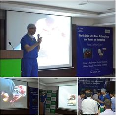 North Delhi Live Knee ‪#‎Arthroplasty‬ and Hands on ‪#‎Workshop‬ by Dr. Ashish Jain @ Fortis Hospital, Shalimar Bagh. http://kneejointreplacement.in/ ‪#‎KneeJointReplacement‬ ‪#‎Surgery‬