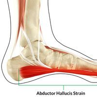 Abductor Hallucis Strain  Abductor Hallucis Strain The function of abductor hallucis muscle is to flex and abduct big toe along with supporting the foot arch. Symptoms of Abductor Hallucis Strain include: Pain, overpronation and tenderness. Causes include: overuse injury, prolonged standing, overweight and overpronation of the foot when walking or running. Treatment comprises of rest, ice therapy, taping, wearing insoles, NSAIDs, ultrasound therapy and sports massage. Patient should enroll…