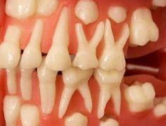 Вы можете вырастить новые зубы самостоятельно за 9 недель: невероятное открытие профессора стоматологии