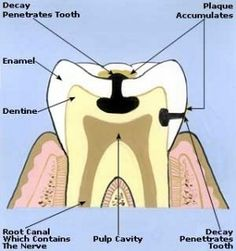 How To Get Rid Of Toothaches From Sugar Sensitivity