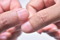 Ridges in fingernails don't make for the prettiest of manicures, but they could also be a sign of another more serious health problem. Infection Fongique, Balle Anti Stress, Nail Problems, Health Problems, Le Psoriasis, Nail Oil, Nail Cuticle, Fingernail Ridges, Underactive Thyroid