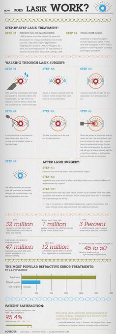 Infographic describing how LASIK works.