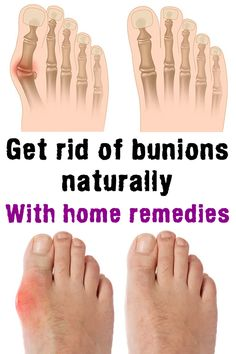 A bunion is an unnatural, bony hump that forms at the base of the big toe where it attaches to the foot. Often, the big toe deviates toward the other toes. When this occurs, the base of the big toe pushes outward on the first metatarsal bone – which is th Natural Home Remedies, Natural Healing, Corn On Toe, Les Muscles Endoloris, Get Rid Of Corns, Bunion Remedies, Get Rid Of Bunions, Healthy Nails, Tips Belleza