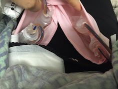 My Successful Mastectomy Surgery thanks to McSweetie and McDreamy! Drains after mastectomy.