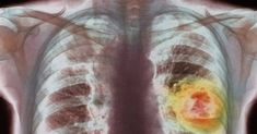 Top Healing Foods That Fight Lung Cancer Signs Of Lung Cancer, Lung Cancer Symptoms, Brain Healthy Foods, Brain Food, Organic Meat, Eating Organic, High Antioxidant Foods, Refined Oil, Holistic Nutrition