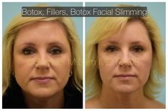 woman is shown before and 3 weeks after first-time Botox, fillers, and Botox facial slimming.This woman is shown before and 3 weeks after first-time Botox, fillers, and Botox facial slimming. Hyaluronic Acid Fillers, Plastic Surgery Procedures, Nose Surgery, Botox Injections, Beauty Hacks, Beauty Tips, Rhinoplasty, Cosmetic Dentistry, Laser Hair Removal