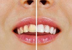 Notícias: Como clarear os dentes com produtos naturais?