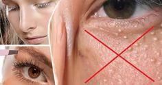 Come rimuovere le milia dal viso in modo naturale