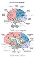 Epilepsy Surgery #epilepsy